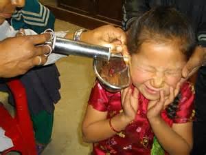 ear syring